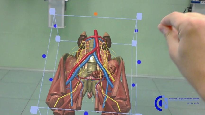 El CCMIJU dirige un proyecto europeo basado en la aplicación de la realidad mixta y la impresión 3D a la educación médica